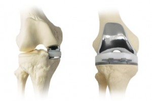 Partial Knee and Total Knee Replacement